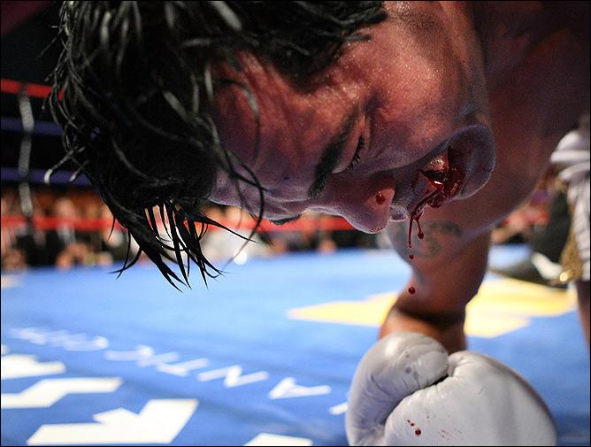 Последний бой Артуро Гатти. В июле 2007 года Гатти встретился с Альфонсо Гомесом, уступив мексиканцу техническим нокаутом (ТКО 7).