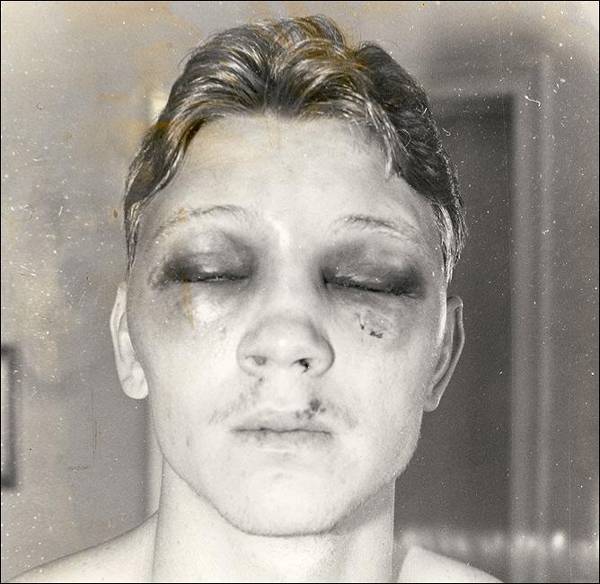 Билли Коллинз-младший после проигранного боя Луису Ресто. Позже результат встречи был аннулирован, поскольку в тейпе Ресто был обнаружен гипс.