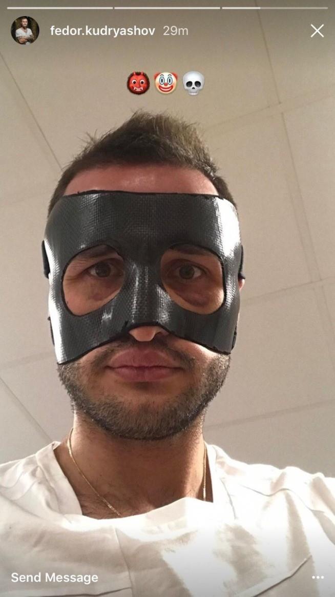 Кудряшову вправили нос и сделали защитную маску перед матчем со «Спартаком»