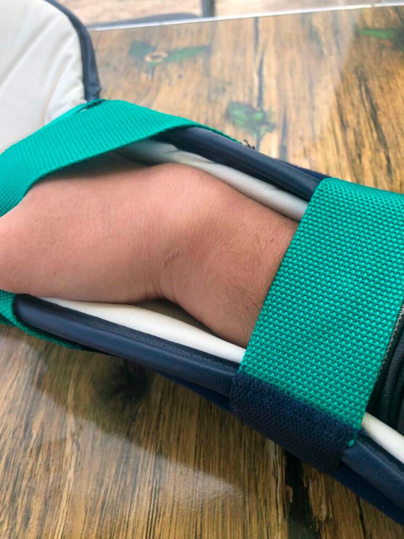 Правая рука Сергея Карякина после аварии