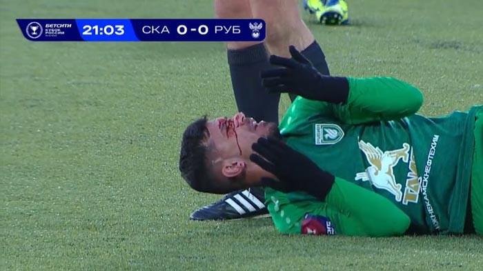 «Он должен был умереть, чтобы соперник заслужил удаление». Скандал в матче Кубка