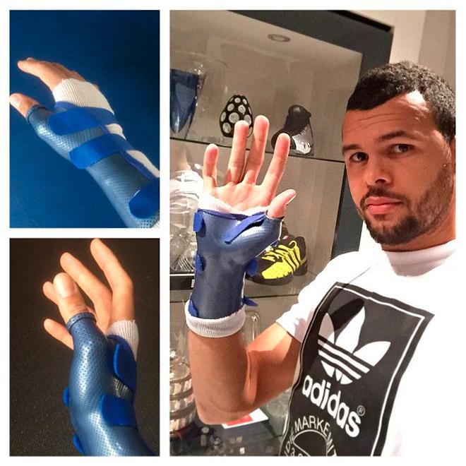 Цонга не успел восстановиться от травмы руки