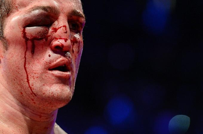 Травма Дениса Лебедева полученная им во время первого боя с Гильермо Джонсом