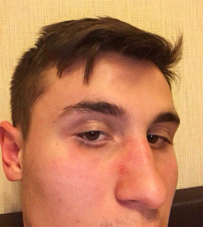 Выпускник академии «Зенита» Алексей Бурдейный демонстрирует след от протектора ботинка на носу