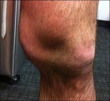 Травмированное колено Райана О'Байна