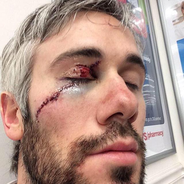 Дрю Миллер после удара коньком по лицу