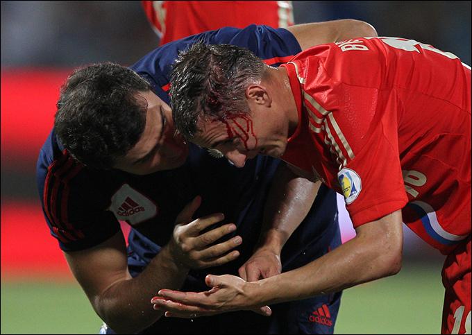 Владимир Быстров в сборной мужественно переносит травмы