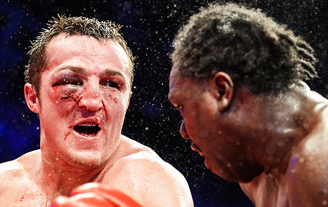 В первом бою Лебедев получил тяжёлую травму лица