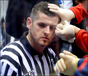 Венгерский арбитр Петер Гебеи получил травму и не смог закончить матч