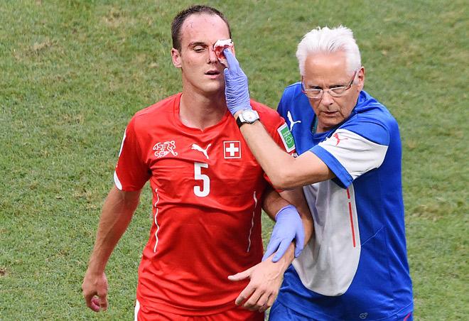 Швейцария — Франция — 2:5. Окровавленный защитник швейцарцев Стив фон Берген покидает поле