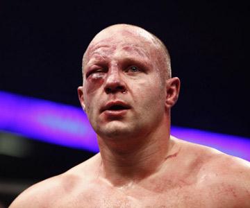 Например, у Фёдора Емельяненко образовалась обширная гематома правого глаза, и врачи наложили запрет на продолжение боя с Силвой.