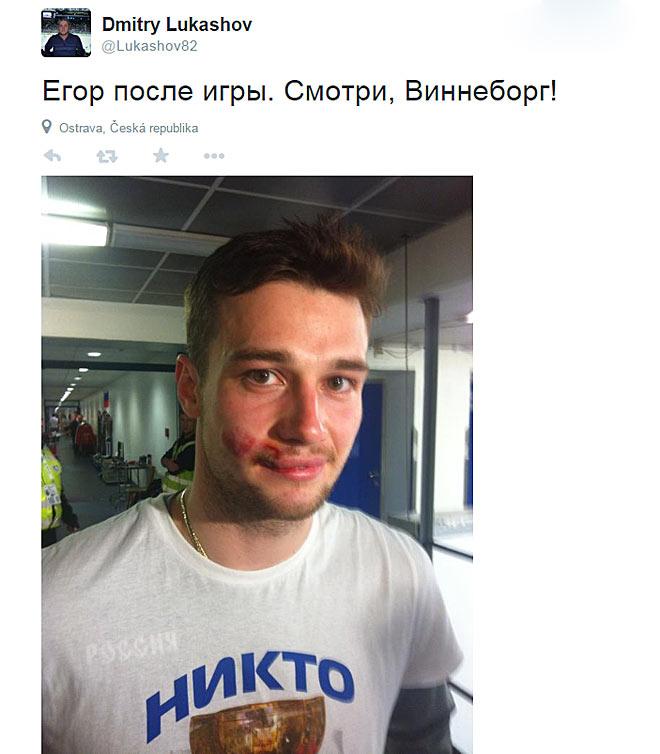 Егор Яковлев после игры со сборной США