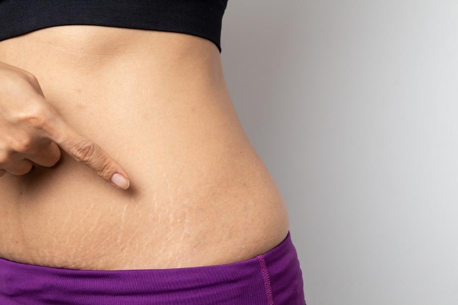 Как избавиться от растяжек после похудения или предотвратить их появление