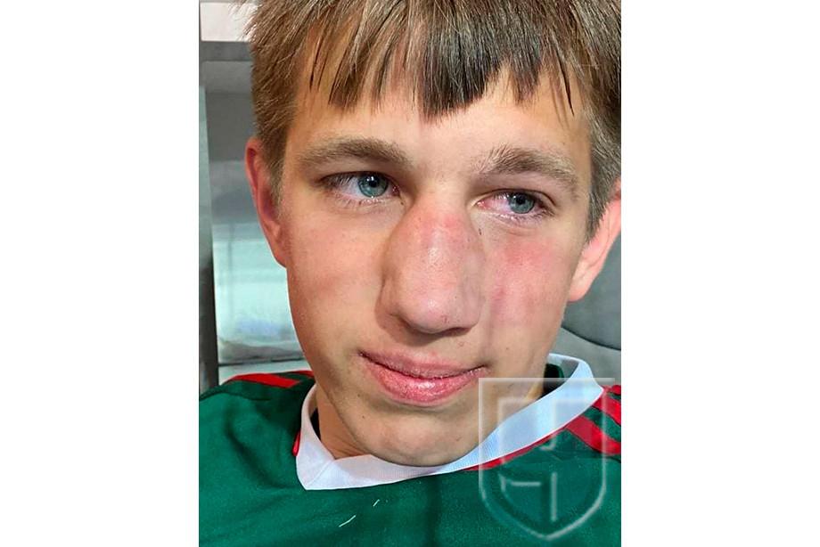 Сотрясение мозга и перелом. Футболисты избили соперника из «Локомотива» после игры!