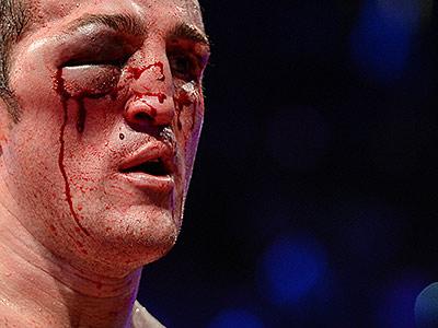 Самые шокирующие рассечения и гематомы в боксе