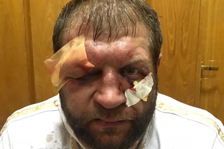 Александр Емельяненко показал фото из больницы, Хабиб поблагодарил Трампа