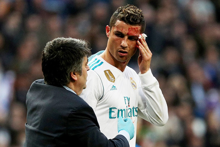 Роналду разбили лицо вматче с«Депортиво»