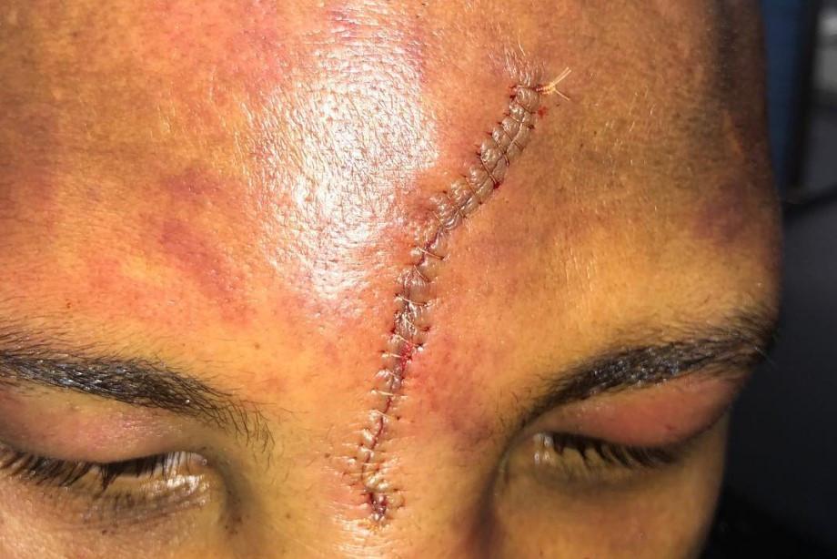 Боксёр пять раундов дрался с пробитой головой. Как так вышло?