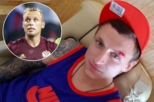 Кубковые матчи «Спартака» и «Зенита» в 2007-м – сломанный нос Быстрова и много скандалов