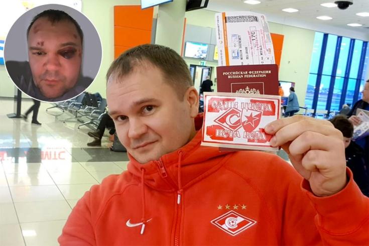 Фаната «Спартака» избили в Сербии – подробности