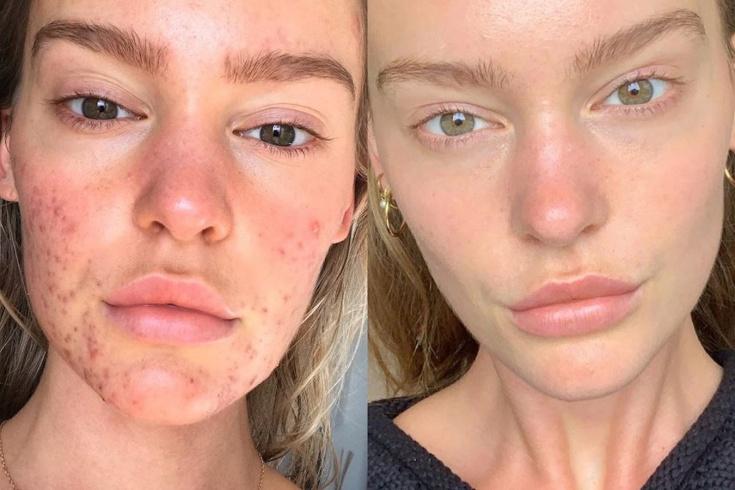 Как модель Джорджия Гиббс избавилась от акне?