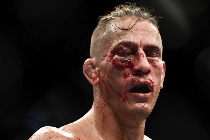 UFC 249, боец Нико Прайс получил жестокую травму, у него закрылся глаз